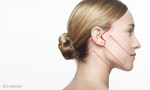 lifting du visage vecteur de tension des muscles