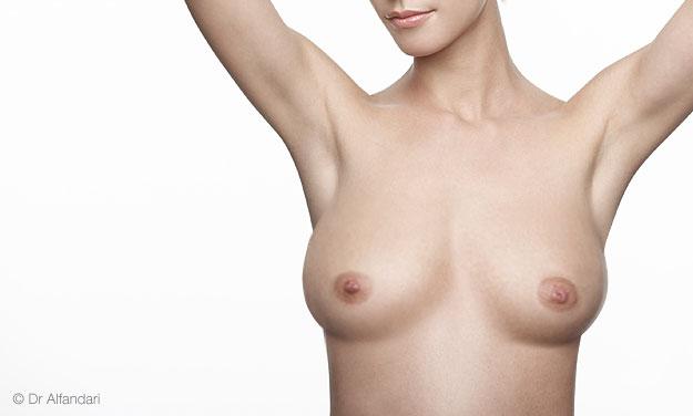 rduction-mammaire-1